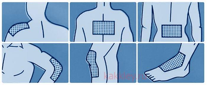 Основные области приклеивания перцового пластыря