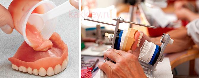 Можно ли склеивать зубной протез суперклеем