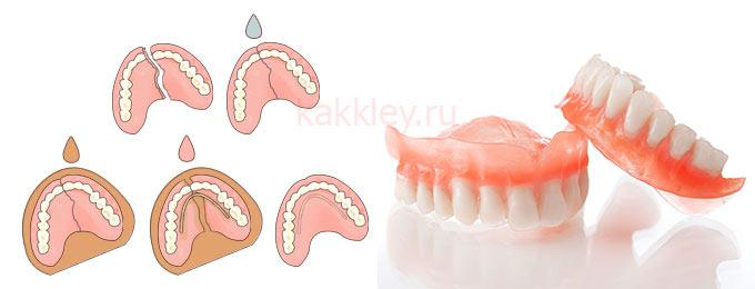 Что делать с треснувшим зубным протезом